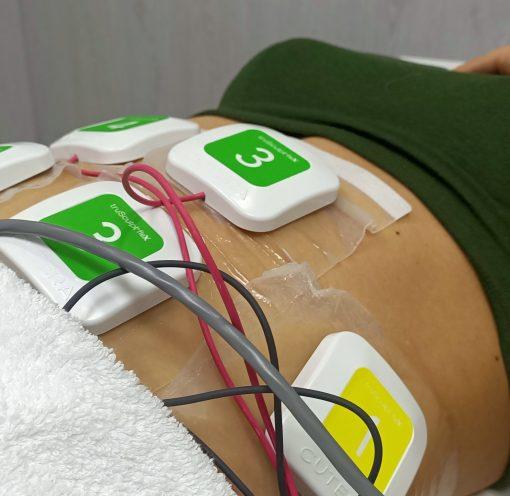 Tratamiento abdominal